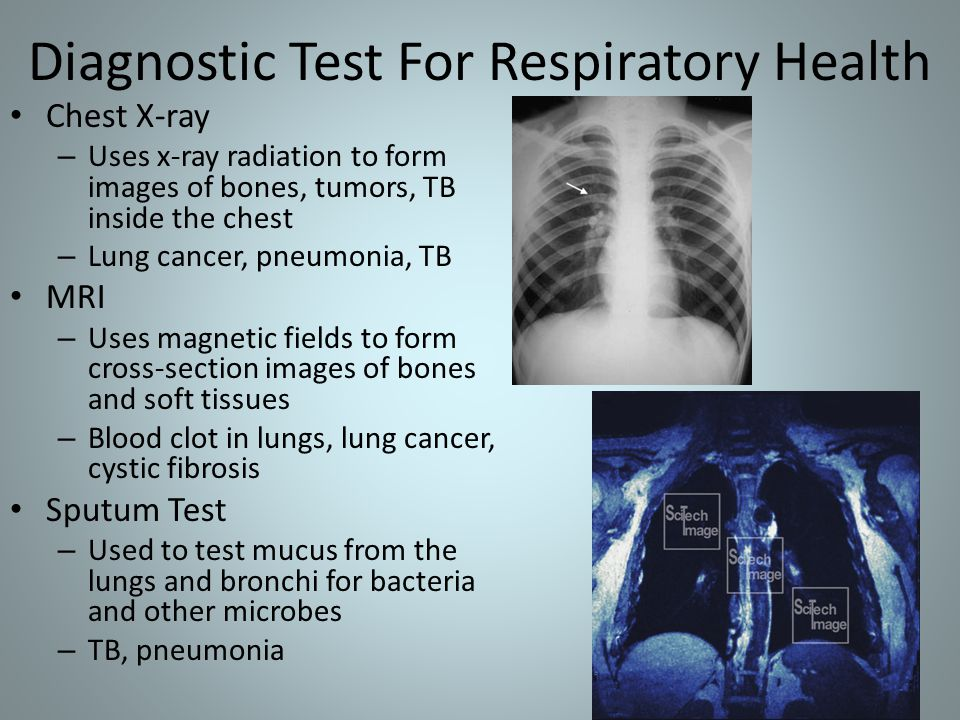 Diagnostic Test For Respiratory Health Chest X-ray – Uses x-ray radiation to form images of bones, tumors, TB inside the chest – Lung cancer, pneumonia, TB MRI – Uses magnetic fields to form cross-section images of bones and soft tissues – Blood clot in lungs, lung cancer, cystic fibrosis Sputum Test – Used to test mucus from the lungs and bronchi for bacteria and other microbes – TB, pneumonia