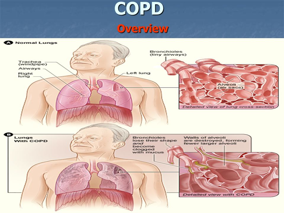 COPD Overview