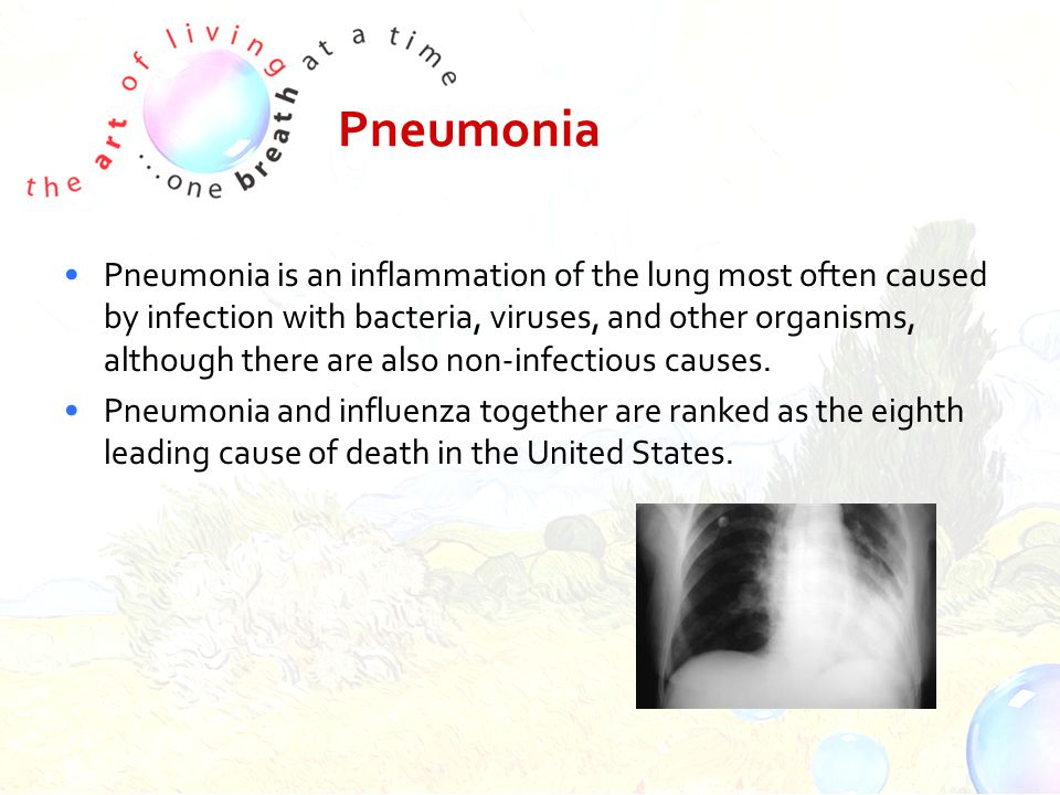 Pneumonia Pneumonia is an inflammation of the lung most often caused by infection with bacteria, viruses, and other organisms, although there are also non-infectious causes.