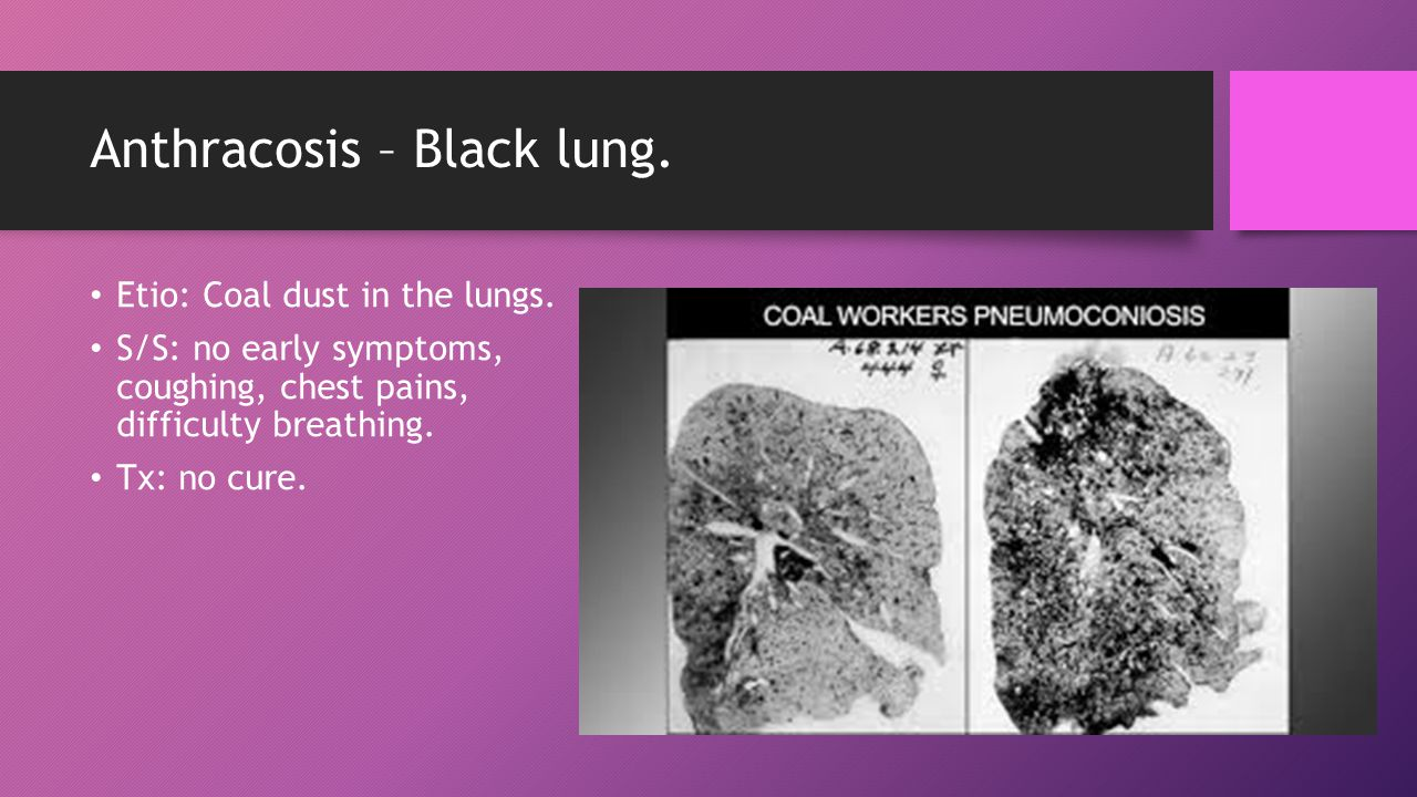 Anthracosis – Black lung. Etio: Coal dust in the lungs.