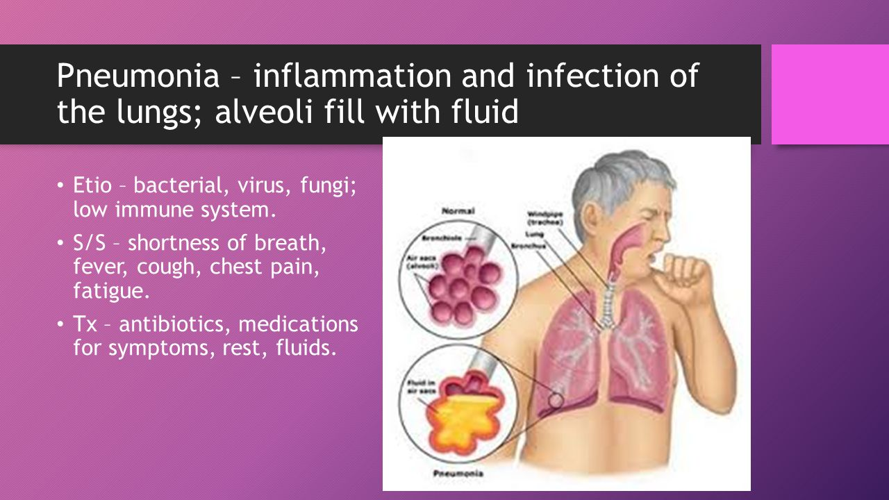 Pneumonia – inflammation and infection of the lungs; alveoli fill with fluid Etio – bacterial, virus, fungi; low immune system.