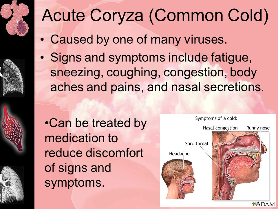 Acute Coryza (Common Cold) Caused by one of many viruses.