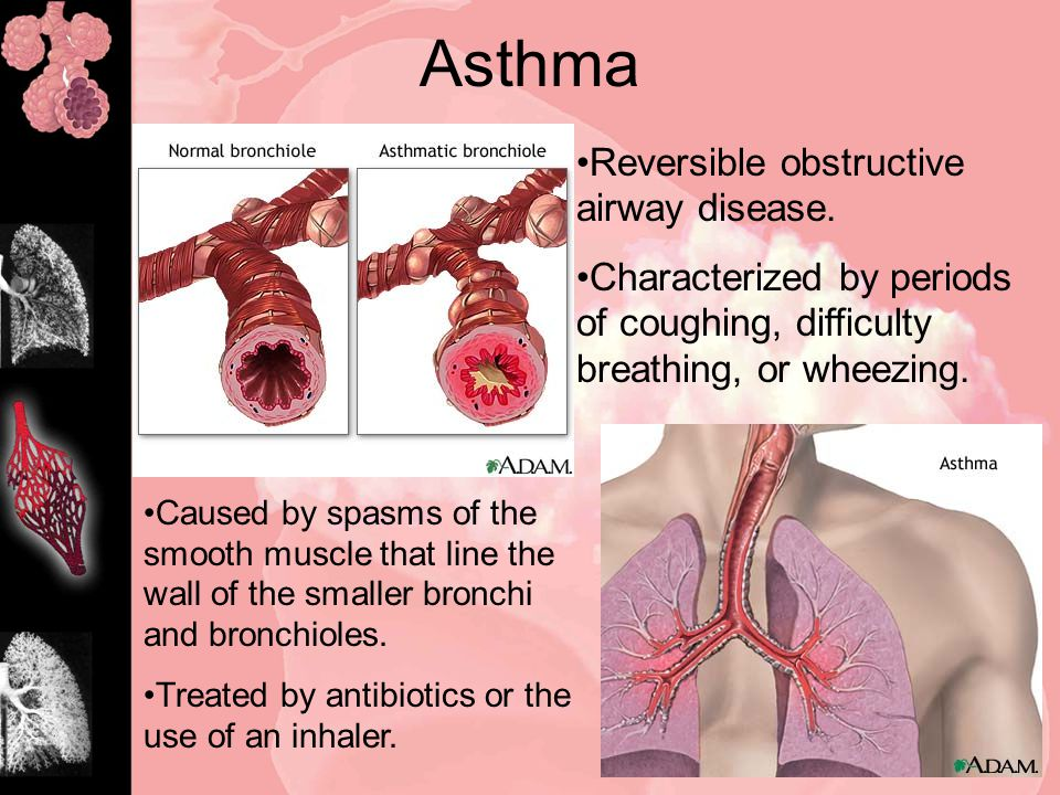 Asthma Reversible obstructive airway disease.