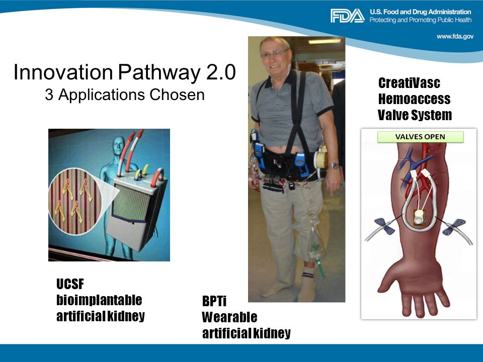 Innovation Pathway Applications Chosen UCSF bioimplantable artificial kidney BPTi Wearable artificial kidney CreatiVasc Hemoaccess Valve System