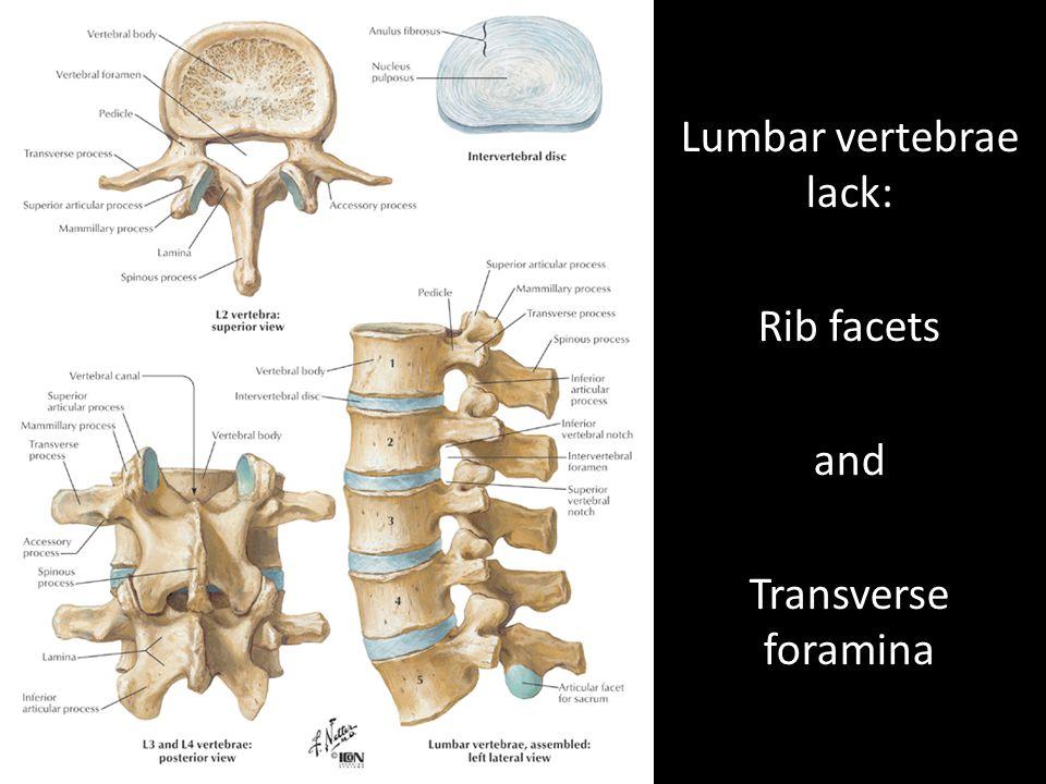 Unfused Vertebrae That Lack Transverse Foramina And Costal Articular ...