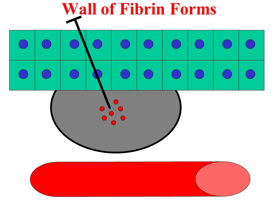 Wall of Fibrin Forms