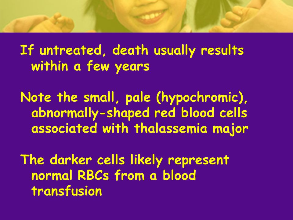 If untreated, death usually results within a few years Note the small, pale (hypochromic), abnormally-shaped red blood cells associated with thalassemia major The darker cells likely represent normal RBCs from a blood transfusion