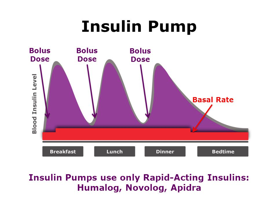 Quick Pump Facts o Constantly provides insulin o Pager-sized