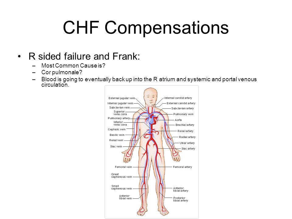 CHF Compensations R sided failure and Frank: –Most Common Cause is.
