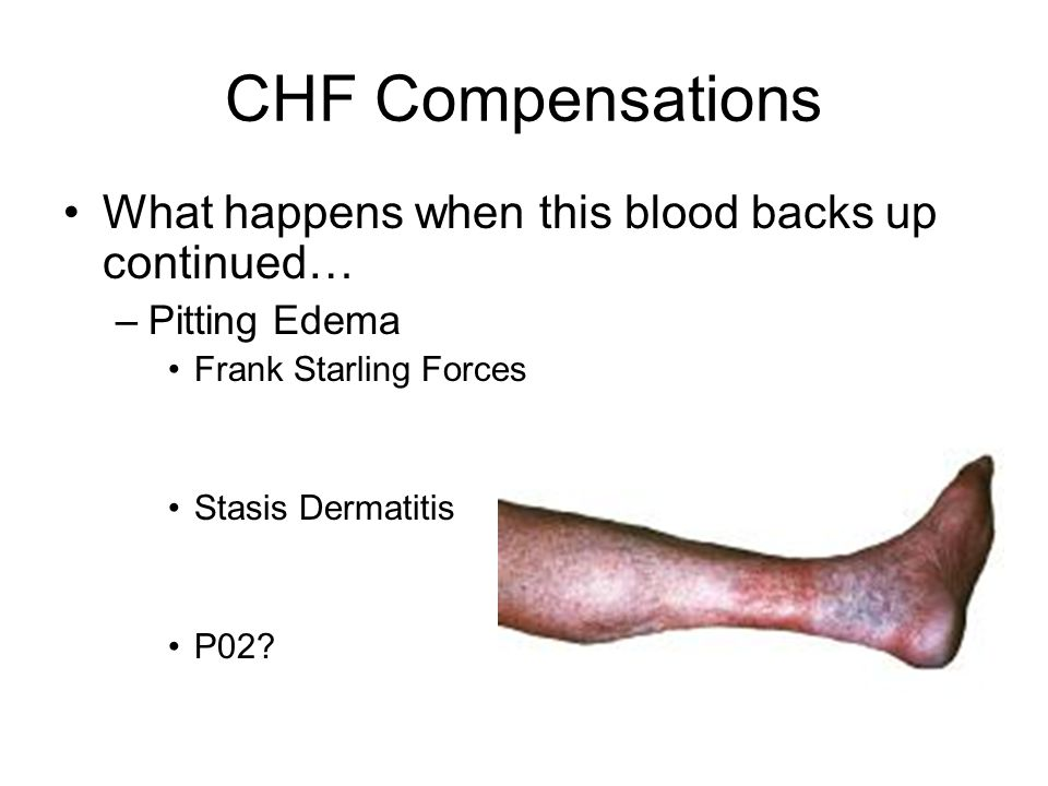 CHF Compensations What happens when this blood backs up continued… –Pitting Edema Frank Starling Forces Stasis Dermatitis P02