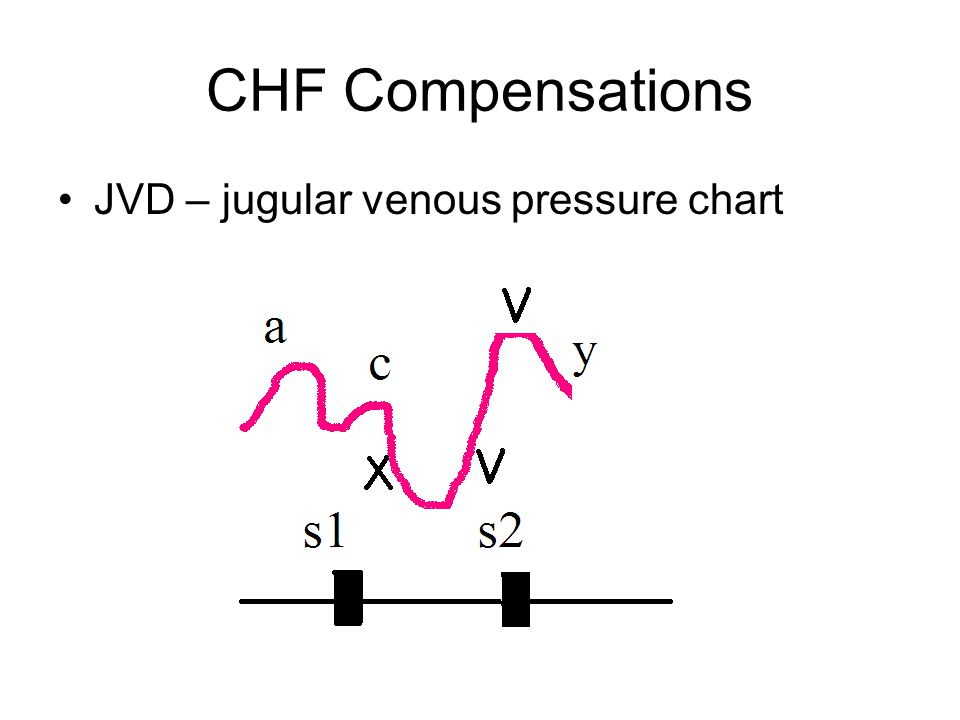 CHF Compensations JVD – jugular venous pressure chart