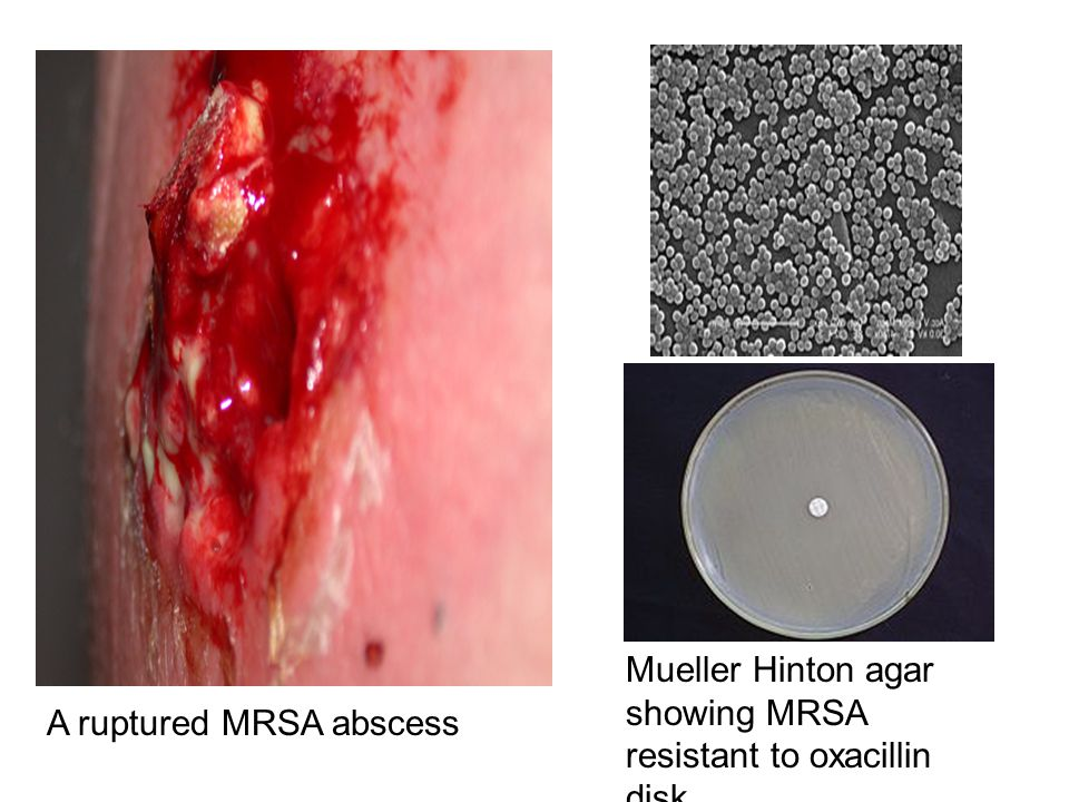 Mueller Hinton agar showing MRSA resistant to oxacillin disk A ruptured MRSA abscess