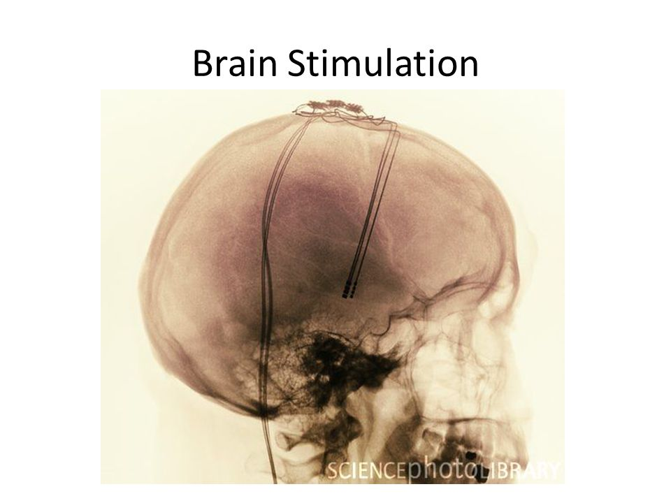 Brain Stimulation