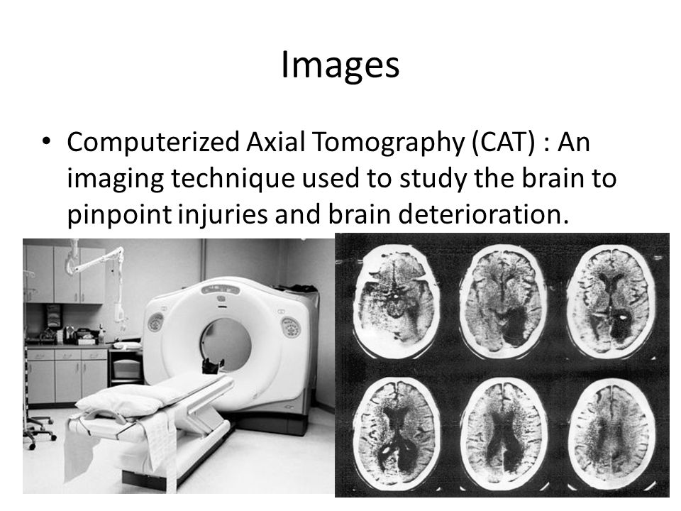 Images Computerized Axial Tomography (CAT) : An imaging technique used to study the brain to pinpoint injuries and brain deterioration.