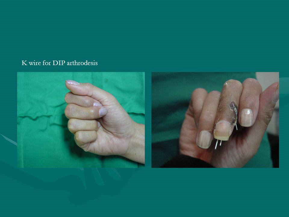 The Hand Small Joint Arthrodesis Reza Sh. Kamrani Orthopaedic ...