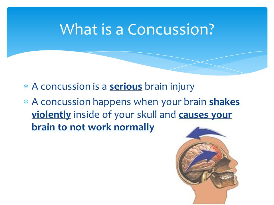  A concussion is a serious brain injury  A concussion happens when your brain shakes violently inside of your skull and causes your brain to not work normally What is a Concussion