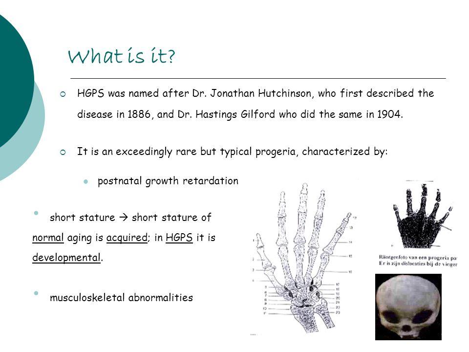 dr jonathan hutchinson progeria