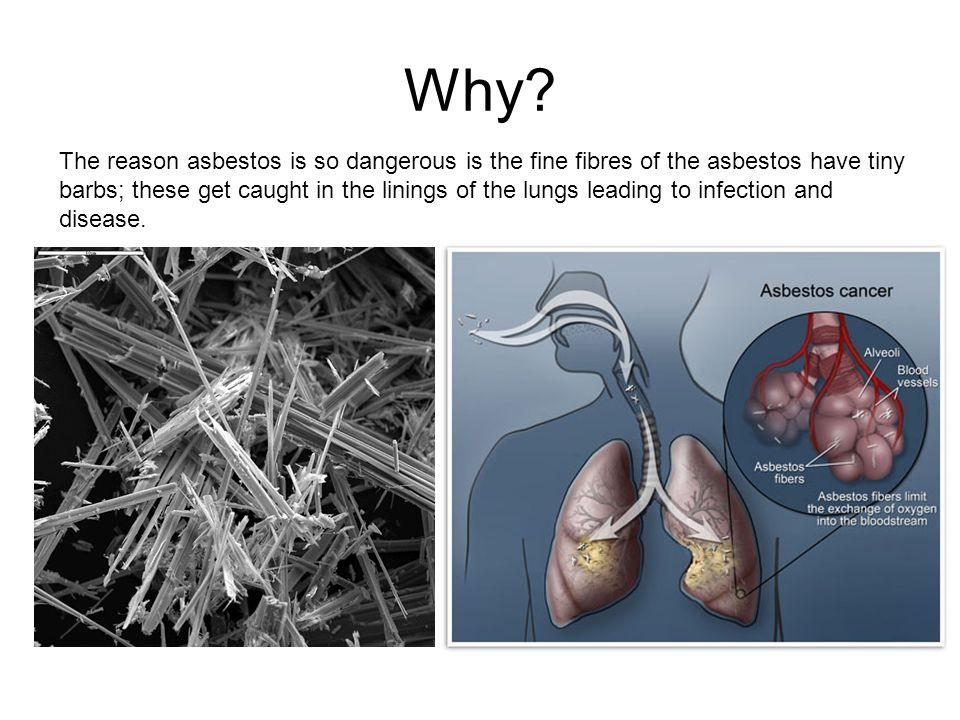 Asbestos Fibers In Lungs : Asbestos serpentine fibers stock photo image of fibrous fibre