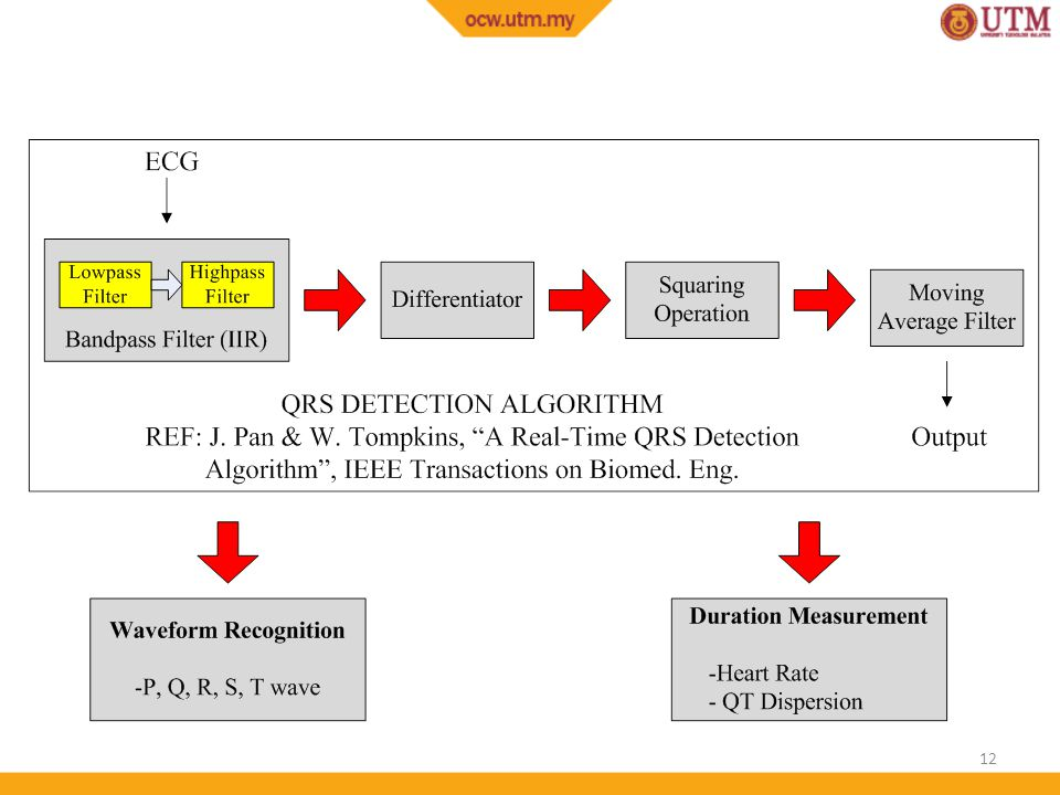 ECG Analysis 2: QT Dispersion Algorithm as a Predictor of
