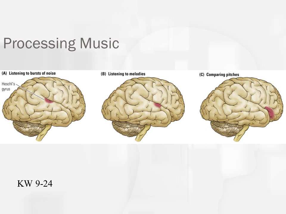 Music and the cortex Hearing and appreciating music is right hemisphere task.