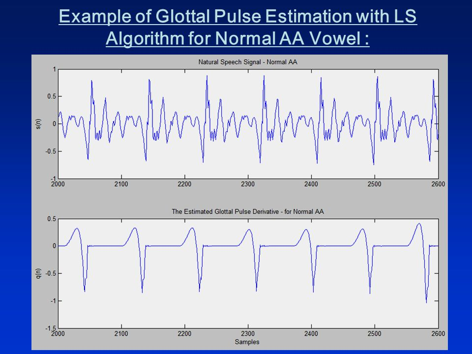 Example of Glottal Pulse Estimation with LS Algorithm for Normal AA Vowel :
