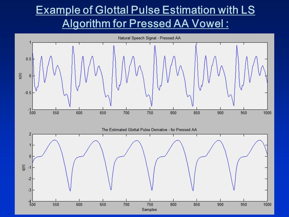 Example of Glottal Pulse Estimation with LS Algorithm for Pressed AA Vowel :