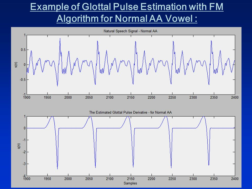 Example of Glottal Pulse Estimation with FM Algorithm for Normal AA Vowel :
