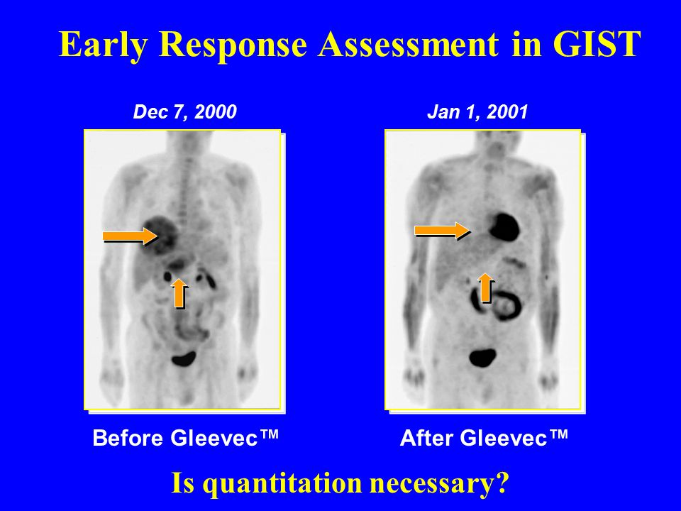 Early Response Assessment in GIST Dec 7, 2000Jan 1, 2001 After Gleevec™Before Gleevec™ Is quantitation necessary