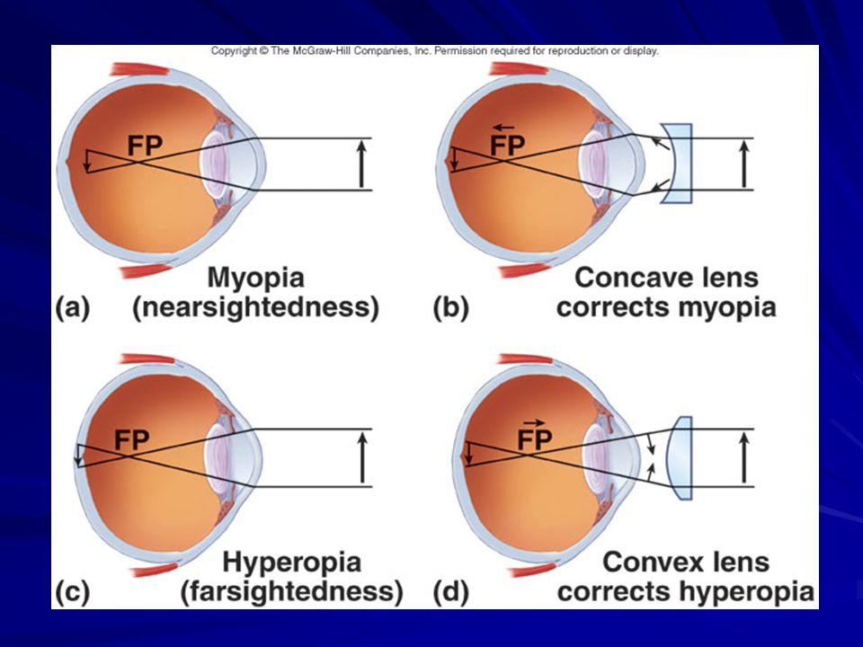 Recunoașterea problemelor de vedere, Localizarea vederii