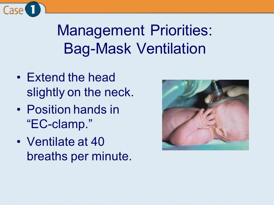 Management Priorities: Bag-Mask Ventilation Extend the head slightly on the neck.