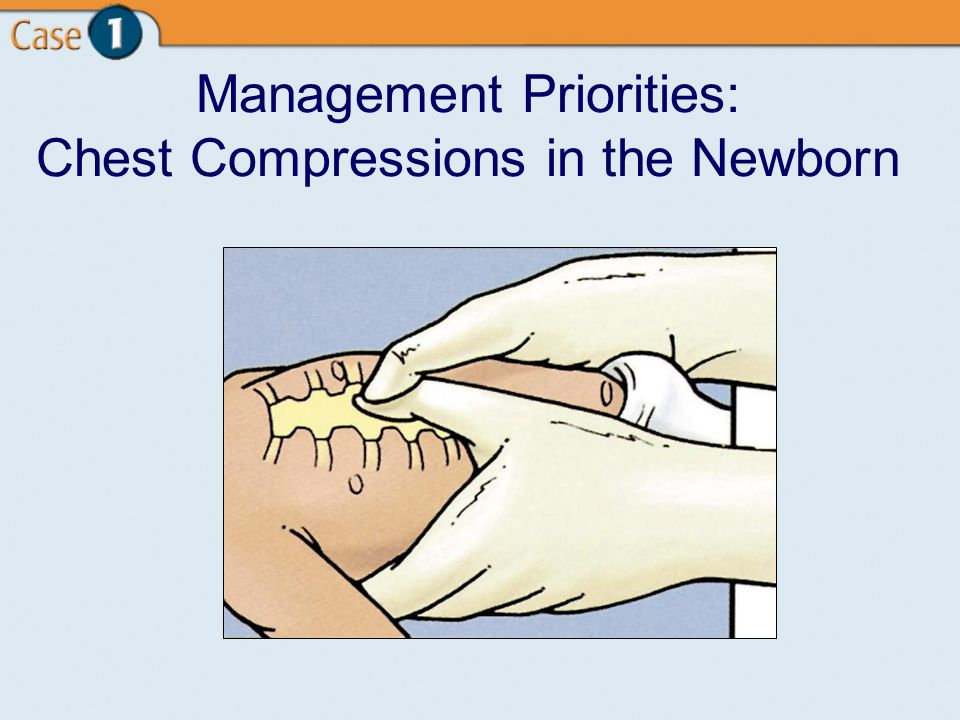 Management Priorities: Chest Compressions in the Newborn