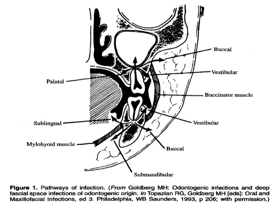 Submandibular Gland Stone Treatment