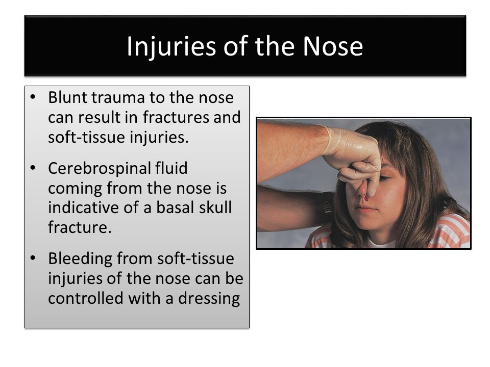 Injuries of the Nose Blunt trauma to the nose can result in fractures and soft-tissue injuries.