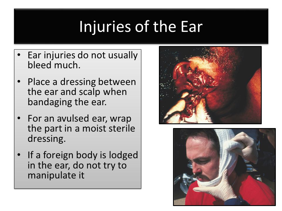 Injuries of the Ear Ear injuries do not usually bleed much.