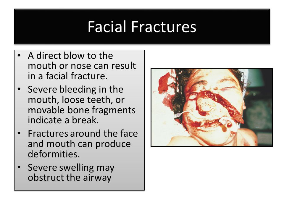 Facial Fractures A direct blow to the mouth or nose can result in a facial fracture.