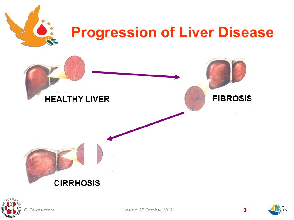 3 CIRRHOSIS FIBROSIS HEALTHY LIVER Progression of Liver Disease © G.