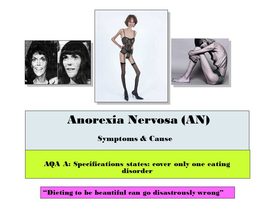 the clinical description of the eating disorder anorexia nervosa People who intentionally starve themselves suffer from an eating disorder called anorexia nervosa the disorder, which usually begins in young people around the time of puberty, involves extreme.