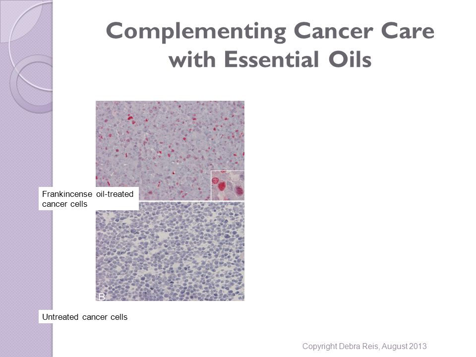 Complementing Cancer Care with Essential Oils Copyright Debra Reis, August 2013 Frankincense oil-treated cancer cells Untreated cancer cells