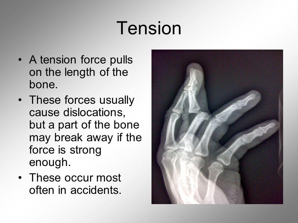 Bones and Trauma  Bone Information After a determination of