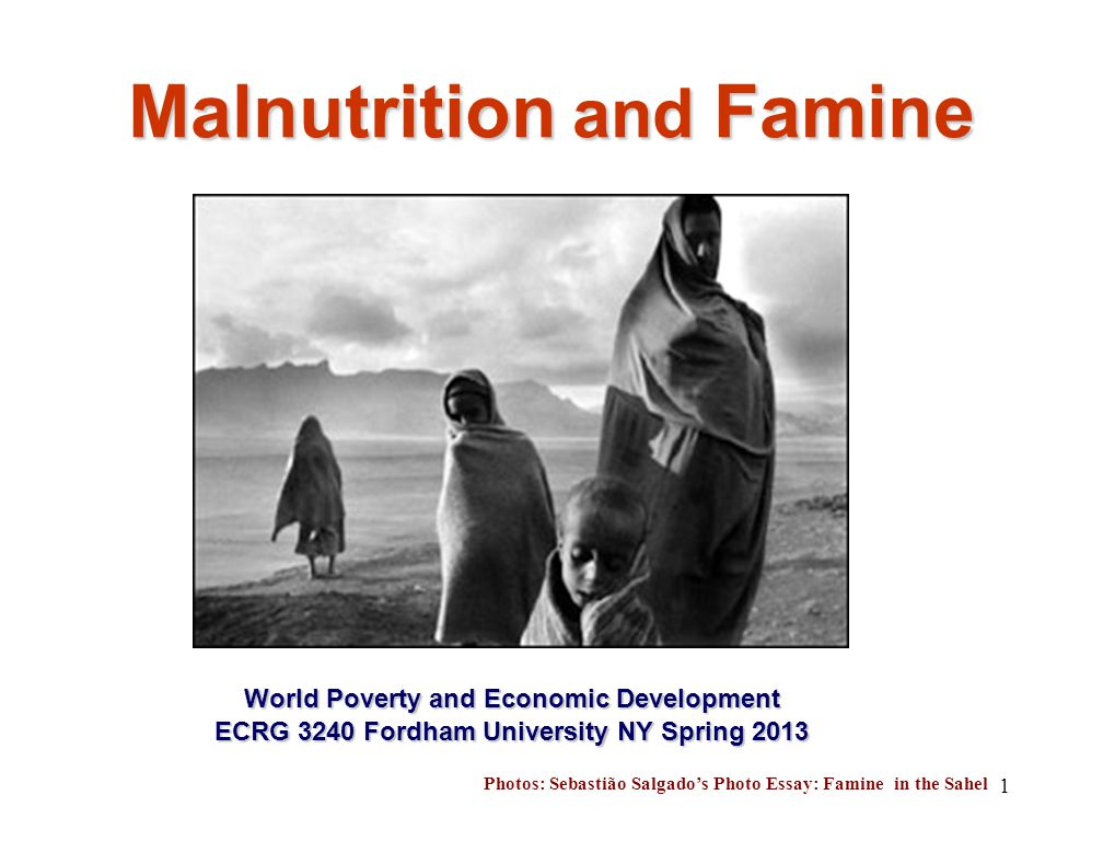 Sample Essays For High School Students   Malnutrition And Famine World Poverty And Economic Development Ecrg   Fordham University Ny Spring  Photos Sebastio Salgados Photo  Essay  Thesis Statement For Comparison Essay also Essay On English Teacher  Malnutrition And Famine World Poverty And Economic Development  Important Of English Language Essay