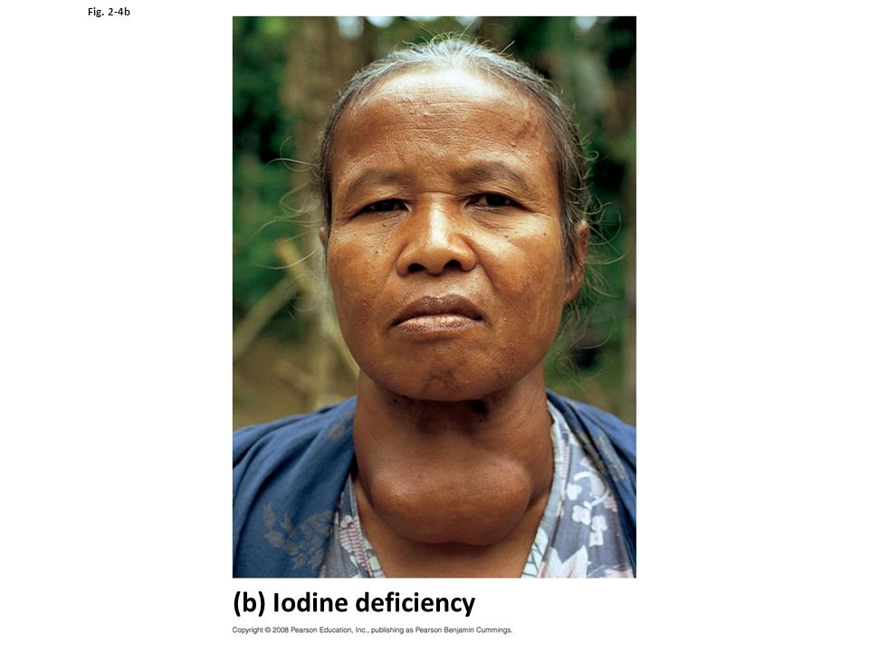 Fig. 2-4b (b) Iodine deficiency