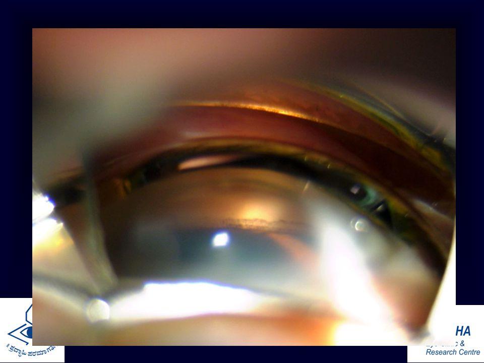 Gonioscopy Drgowri J Murthy Glaucoma Service Ppt Video Online