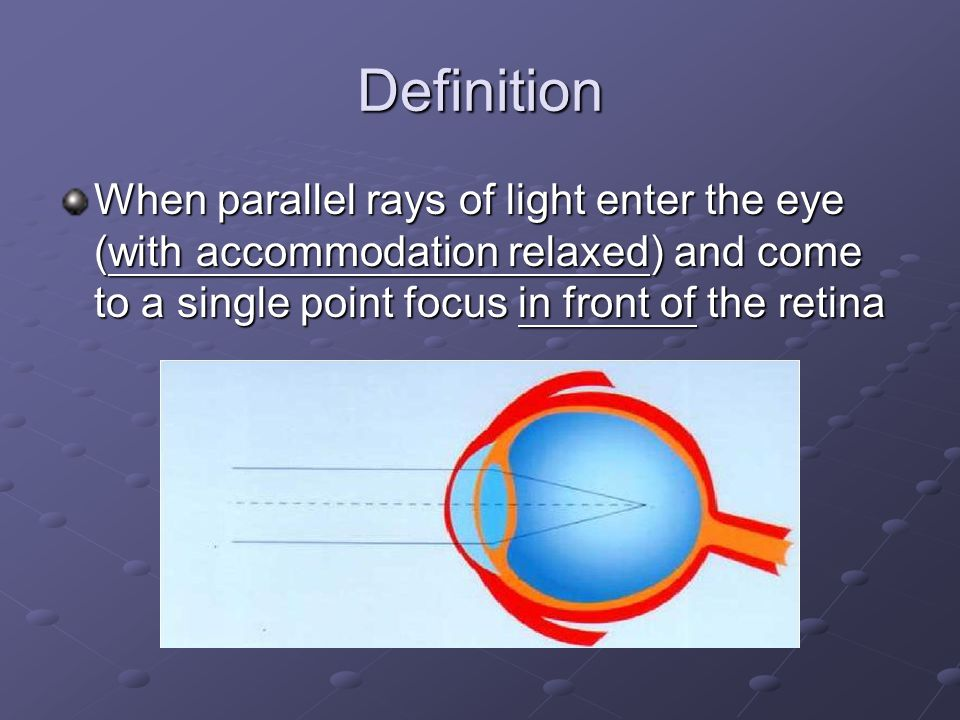Definition When parallel rays of light enter the eye (with accommodation relaxed) and come to a single point focus in front of the retina