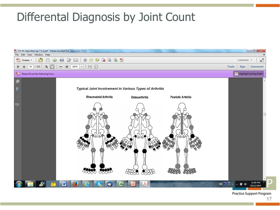 17 Differental Diagnosis by Joint Count