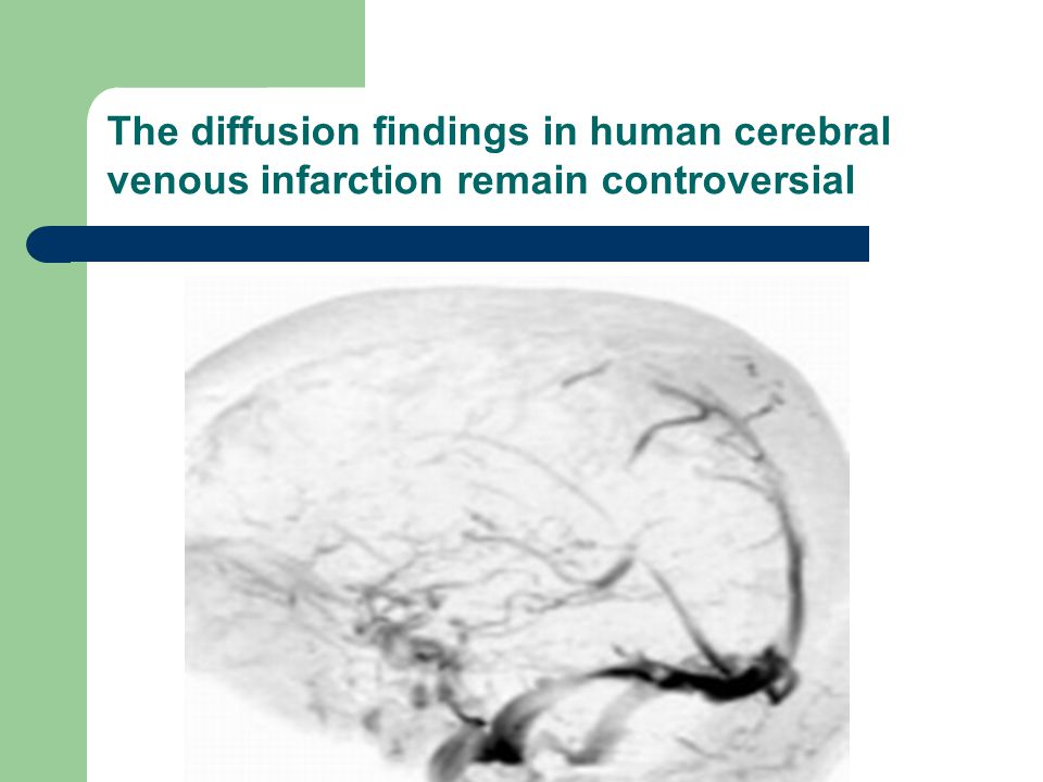 The diffusion findings in human cerebral venous infarction remain controversial
