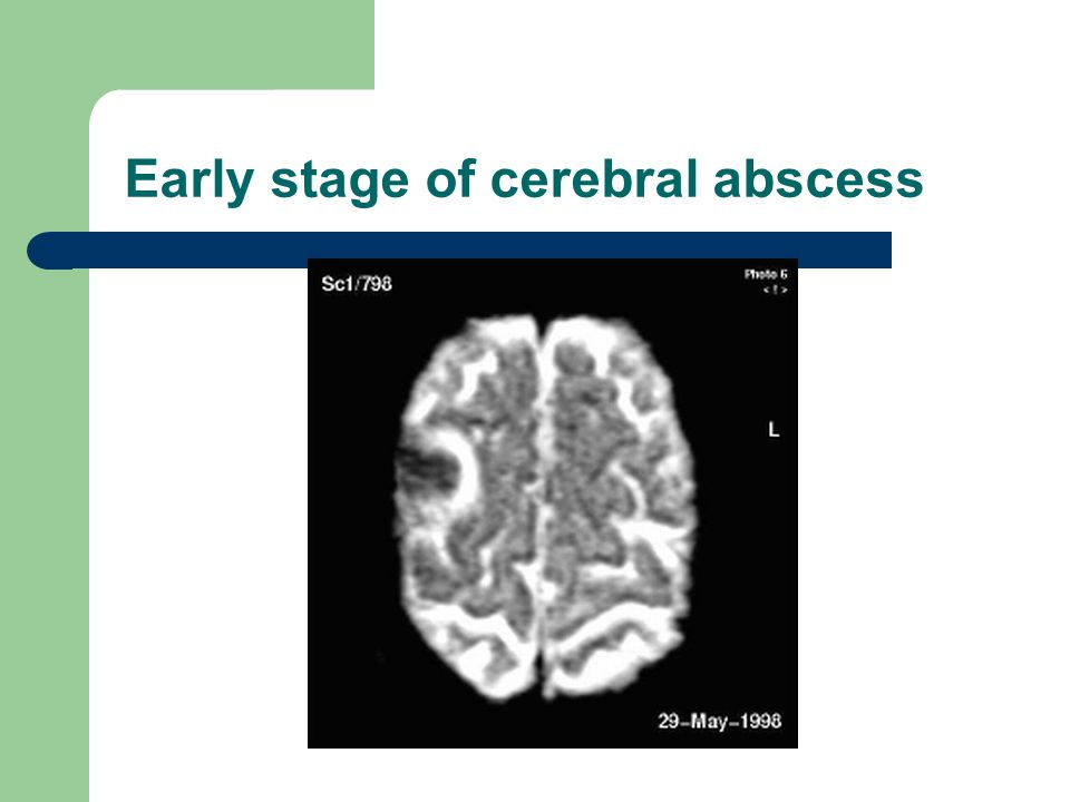 Early stage of cerebral abscess