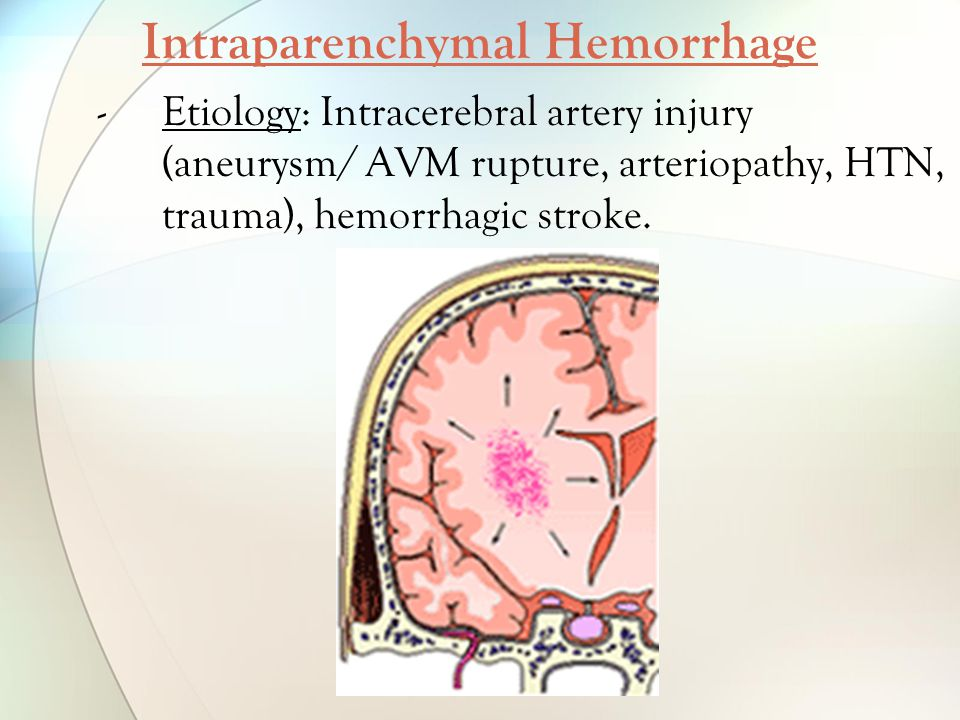 Intraparenchymal Hemorrhage -Etiology: Intracerebral artery injury (aneurysm/ AVM rupture, arteriopathy, HTN, trauma), hemorrhagic stroke.