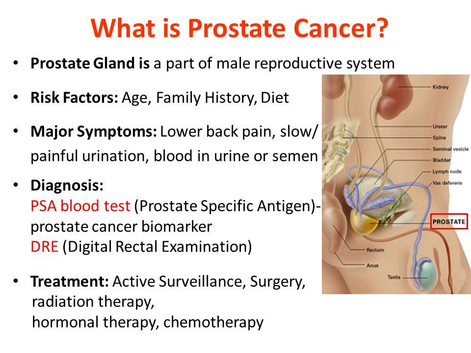 Prostate cancer |authorstream.