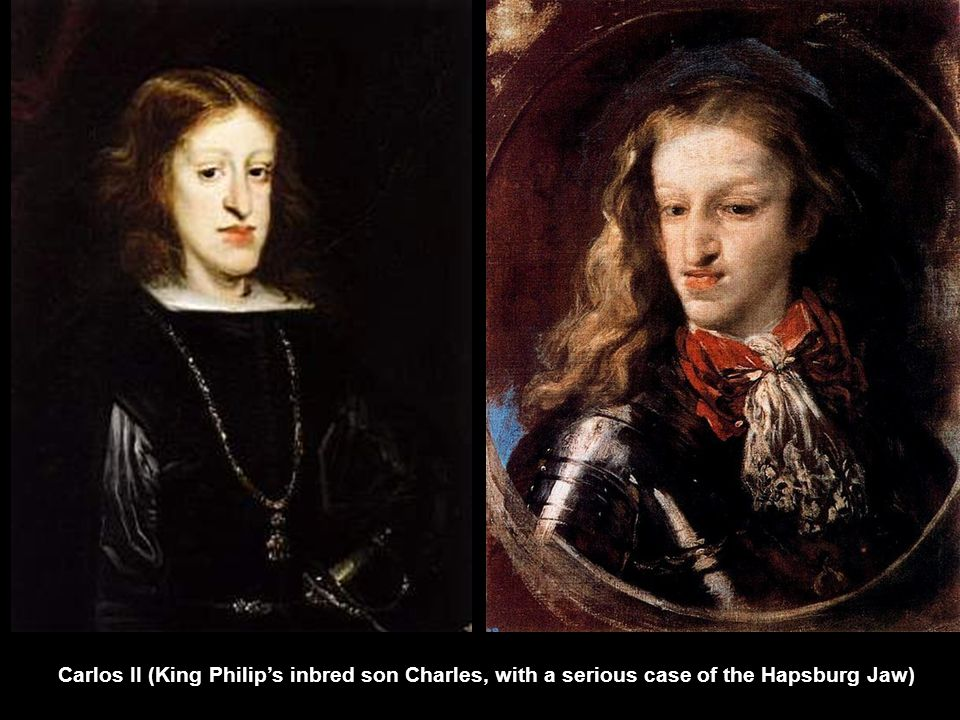 Carlos II (King Philip's inbred son Charles, with a serious case of the Hapsburg Jaw)