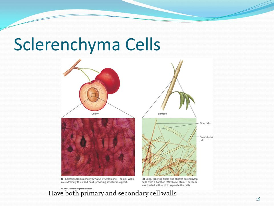 Sclerenchyma Cells 16 Have both primary and secondary cell walls